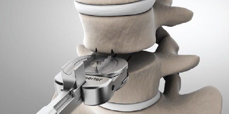 Artificial Cervical Disc